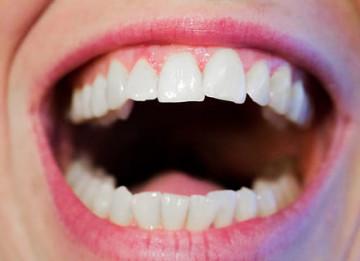 8 Cara Menghilangkan Karang Gigi Secara Alami Di Rumah yang Wajib Dicoba!
